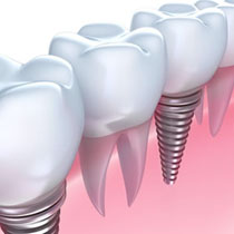 Implants and Restoration